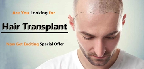Hair Transplant in Shimla photo